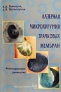 Лазерная микрохирургия зрачковых мембран