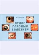 Атлас глазных болезней