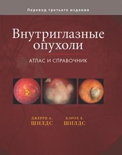 Внутриглазные опухоли. Атлас и справочник Том3. - фото 4546