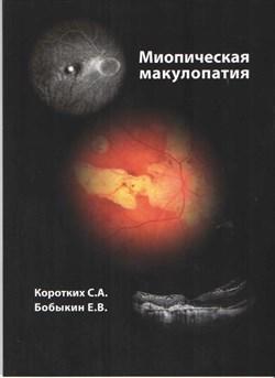 Миопическая макулопатия - фото 4574