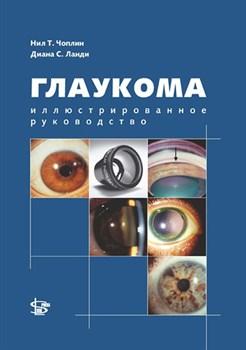 Глаукома. Иллюстрированное руководство - фото 4584