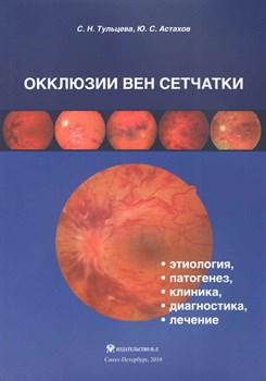 Окклюзии вен сетчатки (этиология, патогенез, клиника, диагностика, лечение) - фото 4782