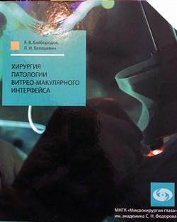 Хирургия патологии витрео-макулярного интерфейса - фото 4948