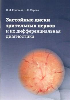 Застойные диски зрительных нервов и их дифференциальная диагностика - фото 5368