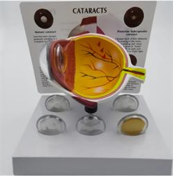 Анатомическая модель глаза человека с катарактой  (под заказ) - фото 5526