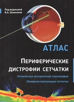 Уценка. Периферические дистрофии сетчатки. Оптическая когерентная томография. Лазерная коагуляция сетчатки: атлас (некондиция) - фото 5607