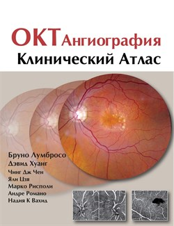 Уценка. ОКТ-ангиография. Клинический атлас (некондиция) - фото 5932