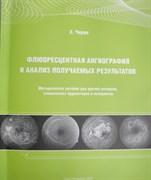 Флюоресцентная ангиография и анализ получаемых результатов