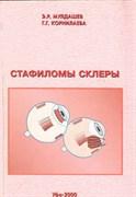 Стафиломы склеры