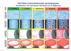 Система классификации осложнений вызванных контактными линзами (по Н. Эфрону)